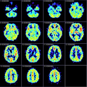 PET scans of the stuttering brain. Photo courtesy of Reigh LeBlanc; reproduced under a Creative Commons license.